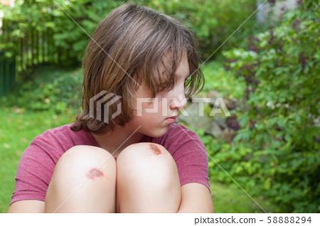 Boy with bruised knee caps in the garden. 58888294