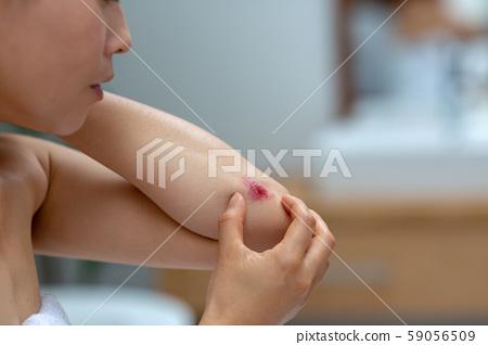 傷痕 劃傷 女生 59056509