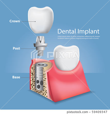 Human teeth and Dental implant Vector Illustration 59409347