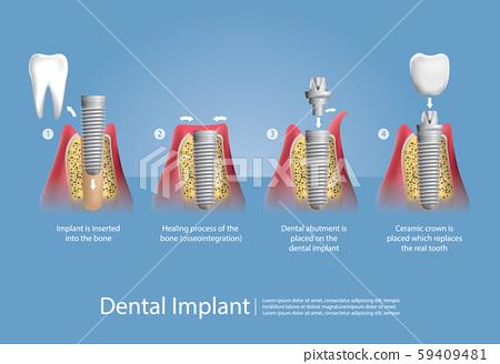 Human teeth and Dental implant Vector Illustration 59409481