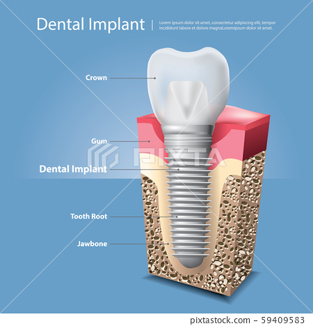Human teeth and Dental implant Vector Illustration 59409583