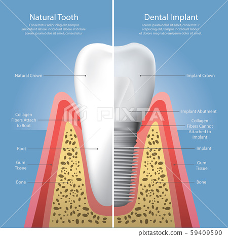 Human teeth and Dental implant Vector Illustration 59409590