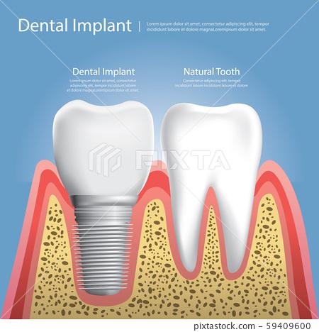 Human teeth and Dental implant Vector Illustration 59409600