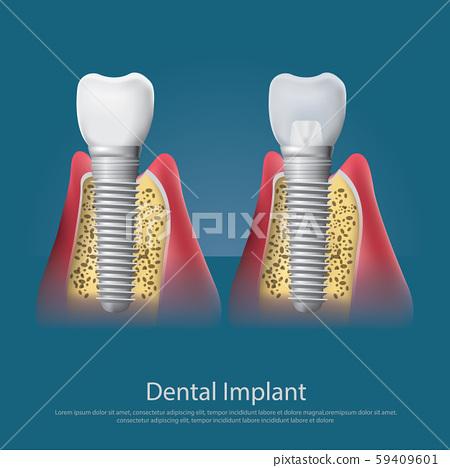 Human teeth and Dental implant Vector Illustration 59409601