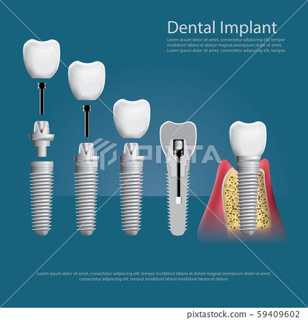 Human teeth and Dental implant Vector Illustration 59409602