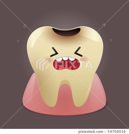 Dental caries 59708016