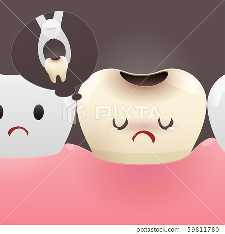 Having a tooth pulled 59811780