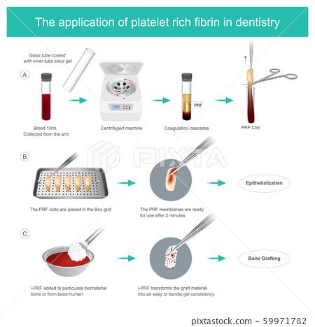 Fibrin-rich platelets (PRF) in dentistry. 59971782