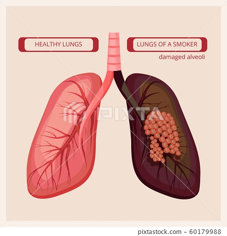 Smoker lungs. Smoke human damage lung cancer vector medical infographic pictures 60179988