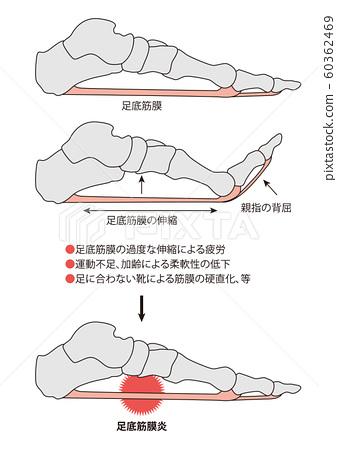 족저 근막염 다리 뼈 다리 근육 60362469