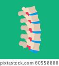 Human vertebrae lumbar backache illness patient 60558888