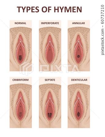 Vagina fotos Category:Comparison images