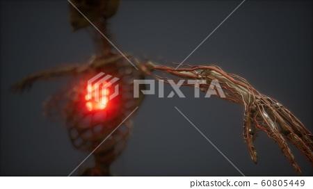 CG Animation Of A Sick Human Heart 60805449