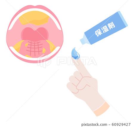 Illustration of moisturizer _ dry mouth 60929427