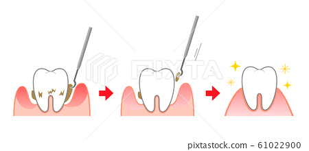 Periodontal disease scaling illustration before and after 61022900