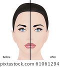 Aging face treatment. Before and after. vector illustration 61061294