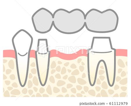 Bridge silver tooth illustration abutment explanation 61112979