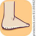 Foot Thick Dry Skin Illustration 61160462