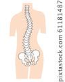 脊柱侧弯畸形 61181487