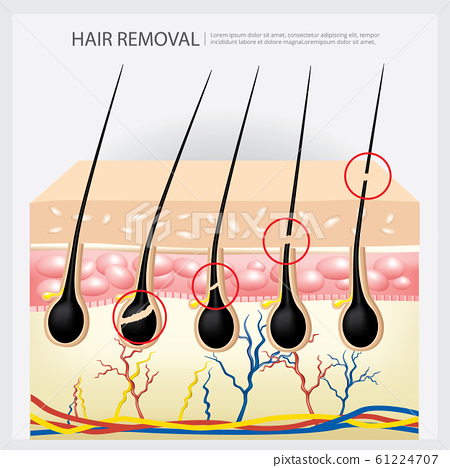 Hair Removal Example Vector Illustration 61224707