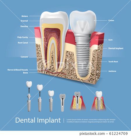 Human teeth and Dental implant Vector Illustration 61224709