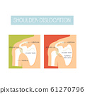 Illustration of a healthy shoulder and dislocation 61270796