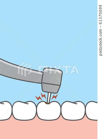 Blank banner Scaling teeth illustration vector on 61370899