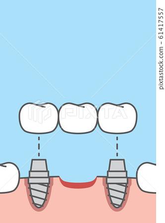 Blank banner Bridges teeth implant illustration 61417557