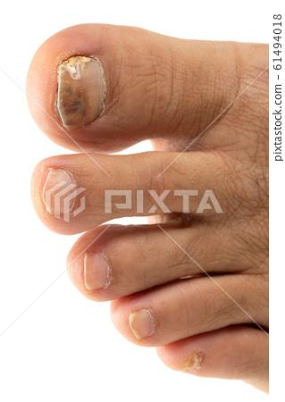 Nail athlete's foot 61494018