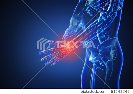 3d rendering of a human body with highlighted in pain 008 61542345