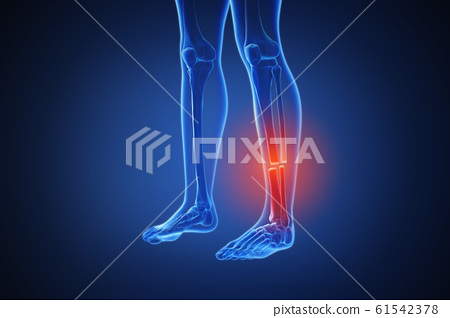 3d rendering of a human body with highlighted in pain 016 61542378