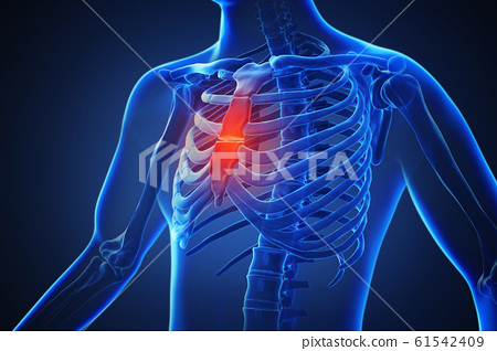 3d rendering of a human body with highlighted in pain 025 61542409