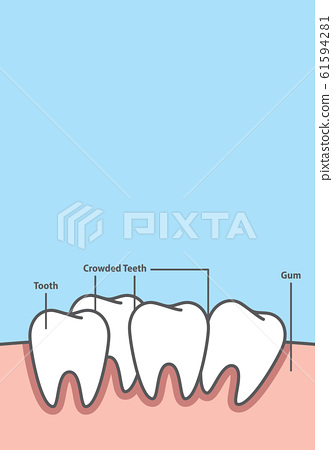 Blank banner Crowding tooth frame cartoon style 61594281