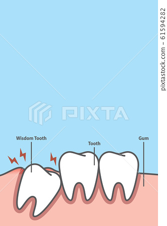 Blank banner Impacted tooth inside under 61594282