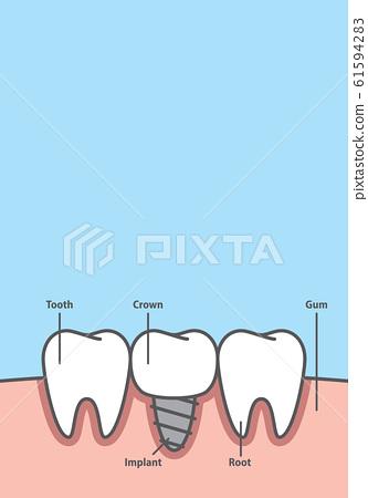 Blank banner Implant tooth between real teeth 61594283