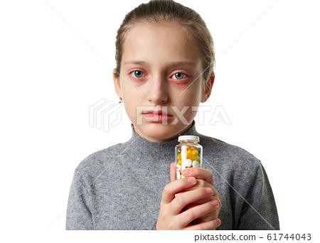 Allergic reaction, skin rash, close view portrait 61744043