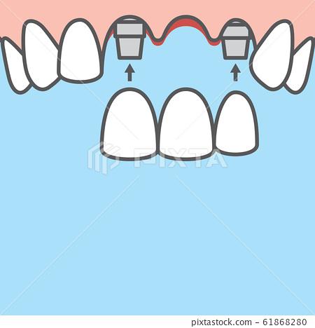 Blank banner Bridges teeth upper (implant) 61868280