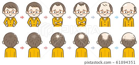 脫髮的進展 61894351