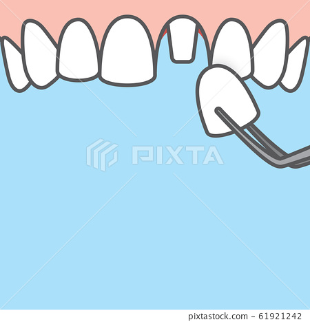 Blank banner Upper Single crown tooth illustration 61921242