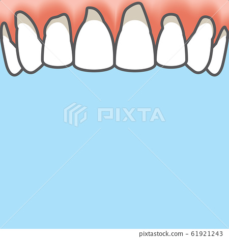 Blank banner Upper Periodontitis human gum 61921243