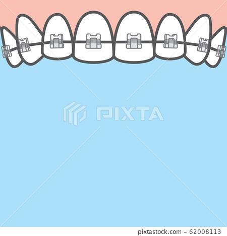 Blank banner Upper clear braces teeth 62008113