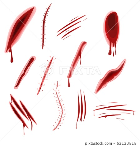 Graphic realistic wound set with blood splash isolated on white background 62123818
