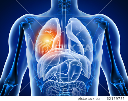 3d illustration human body with lung pain 62139783