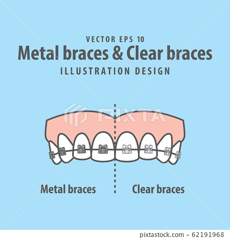 Metal braces teeth & Clear braces teeth (Upper) 62191968