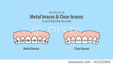 Metal braces teeth & Clear braces teeth (Upper) 62191969