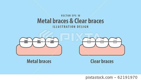 Metal braces teeth & Clear braces teeth 62191970