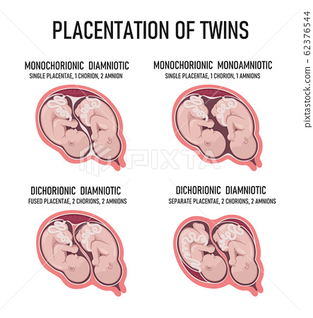 Twin Types. Monozygotic vs Dizygotic Twins - Difference 62376544