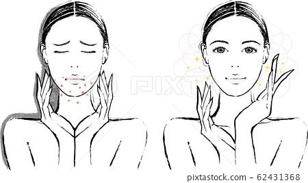 女性成年痤瘡 62431368
