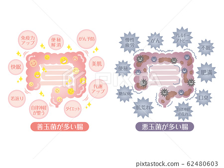 Intestine illustration Intestine with lots of good bacteria Intestine with lots of bad bacteria 62480603