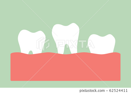 loose tooth, tooth is fall out of the gum 62524411